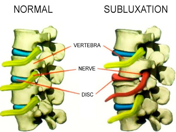 Subluxation Defined in Newark, NJ